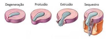 fases-hernia-disco