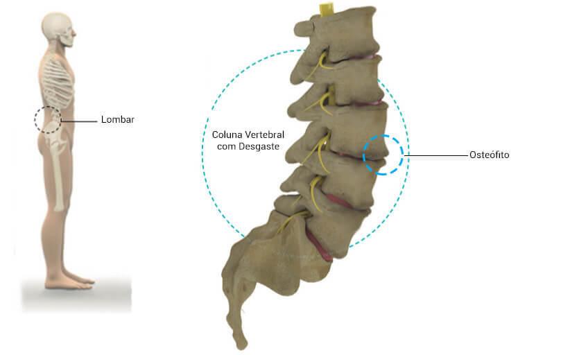 Bico de papagaio exibido na ilustração da região lombar e indicando na coluna vertebral um osteófito.